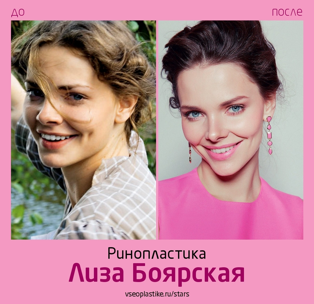 Лиза Боярская сделала ринопластику у Артура Рыбакина