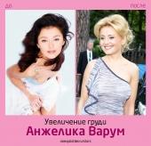 Анжелика Варум до и после увеличения груди