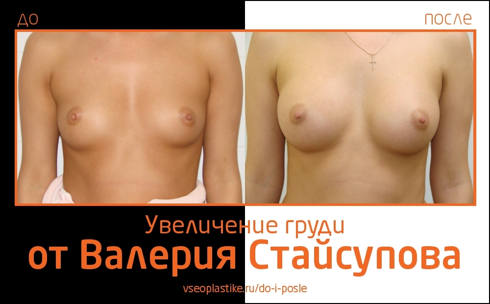 Валерий Стайсупов. Фото до и после увеличения груди