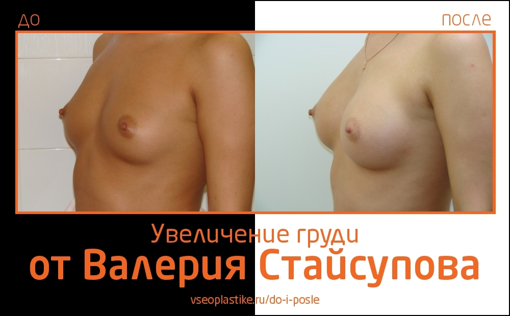 Пациентка увеличила грудь в Институте красоты СПИК у Валерия Стайсупова. В ходе операции ей были установлены круглые импланты Natrelle (МакГан), 275 сс.