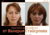 Staisupov_do_posle