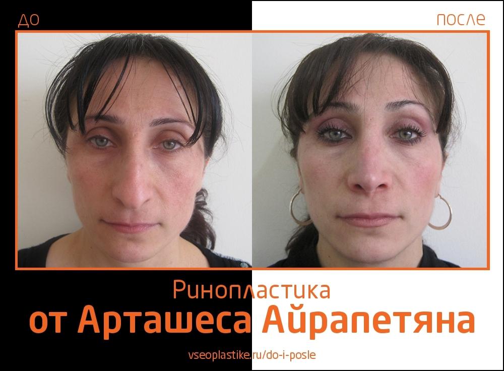 Airapetyan_rino_2