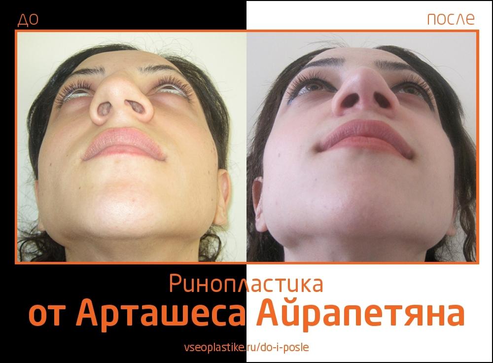 Airapetyan_rino_5