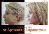 Airapetyan_rino_4