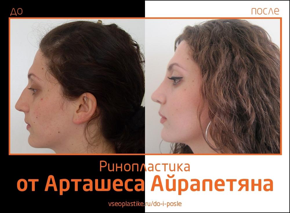 Airapetyan_rino_3