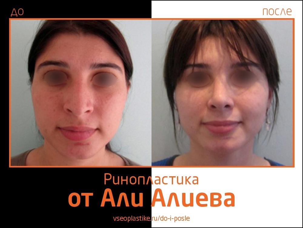 Aliev_rino_3