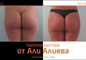 Aliev_glyuteo_2