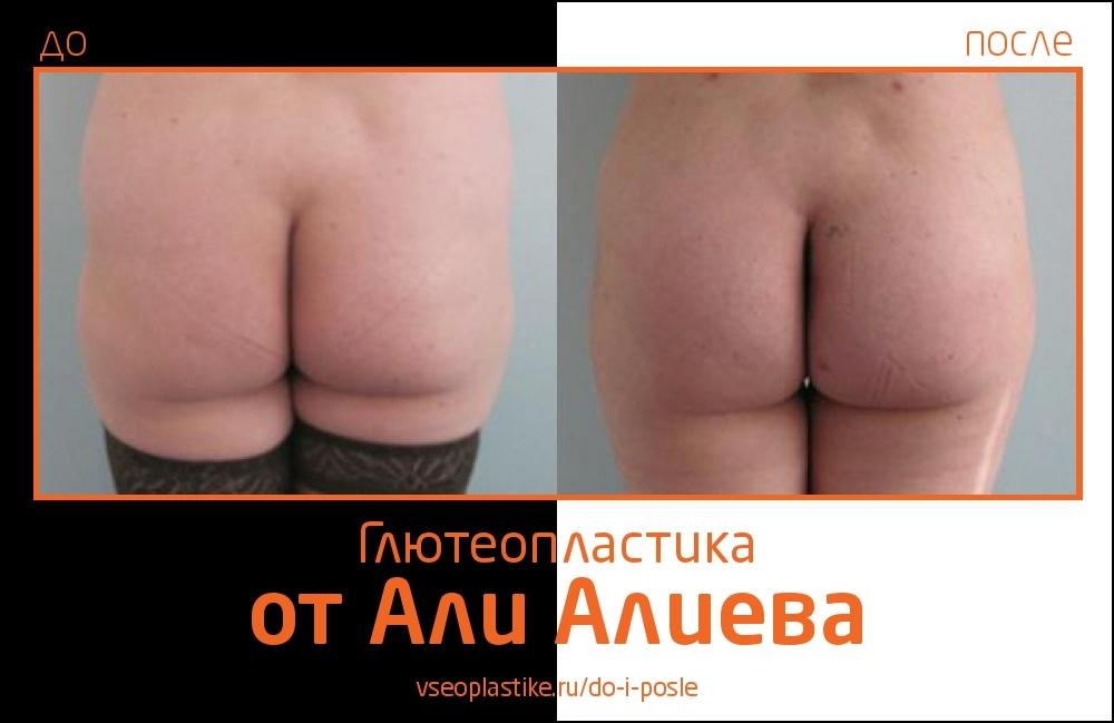 Aliev_glyuteo_1