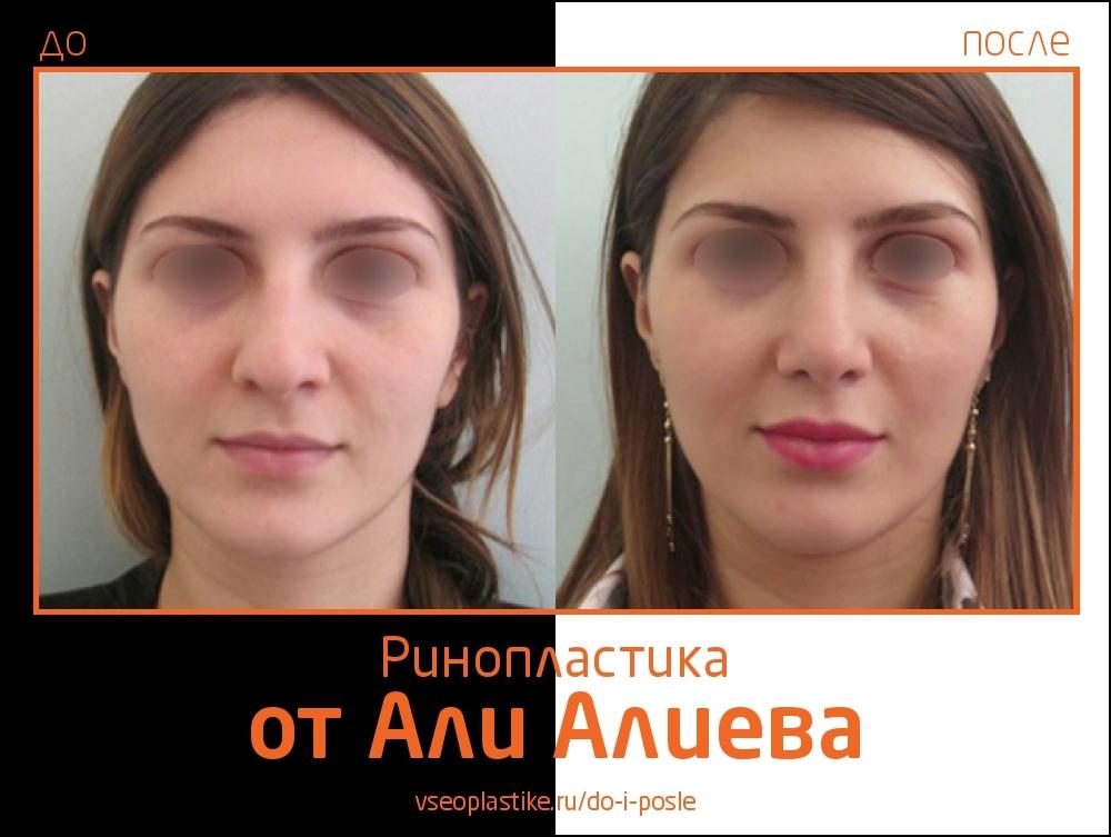 Али Алиев ринопластика до и после