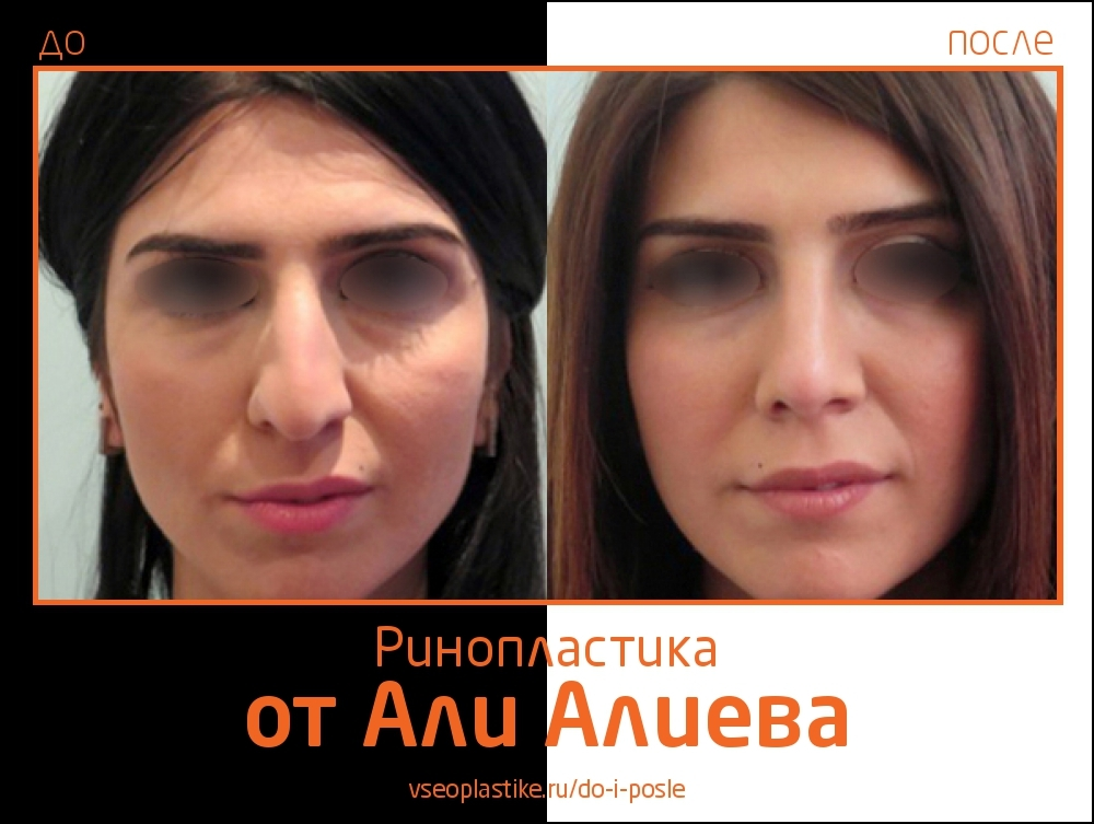 Aliev_rino_4