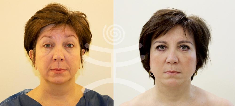 Пациентка доктора В.С. Тарасенко до и после «Лифтинга Мендельсона»