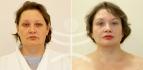 Пациентка доктора В.С. Тарасенко до и после «Лифтинга Мендельсона» Пациентка доктора В.С. Тарасенко до и после «Лифтинга Мендельсона»