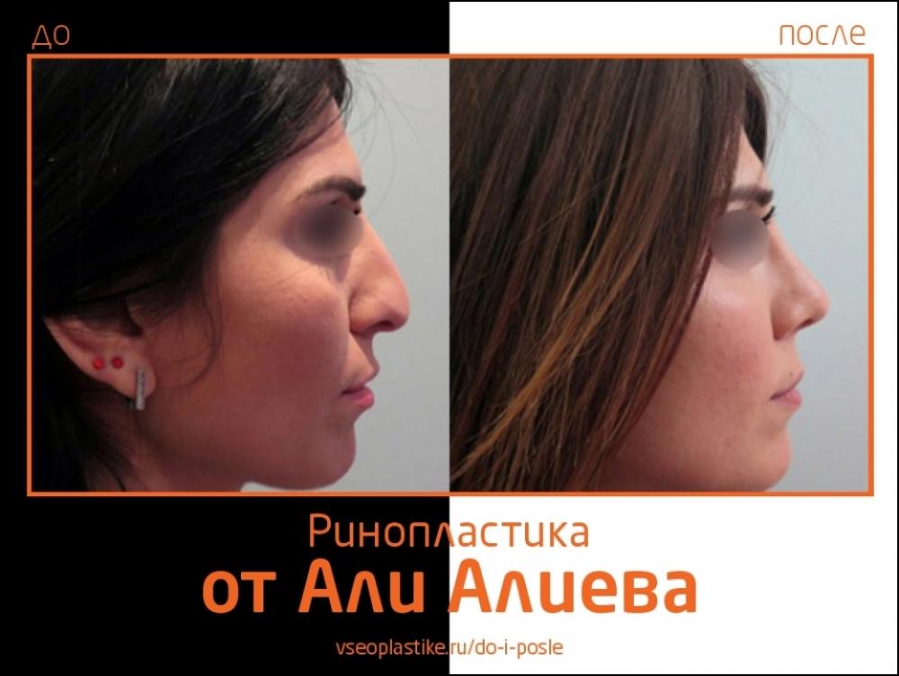 ринопластика Али Алиев до и после