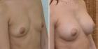 Валерий Стайсупов. Увеличение груди