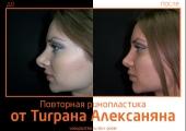 Alexanyan_rino