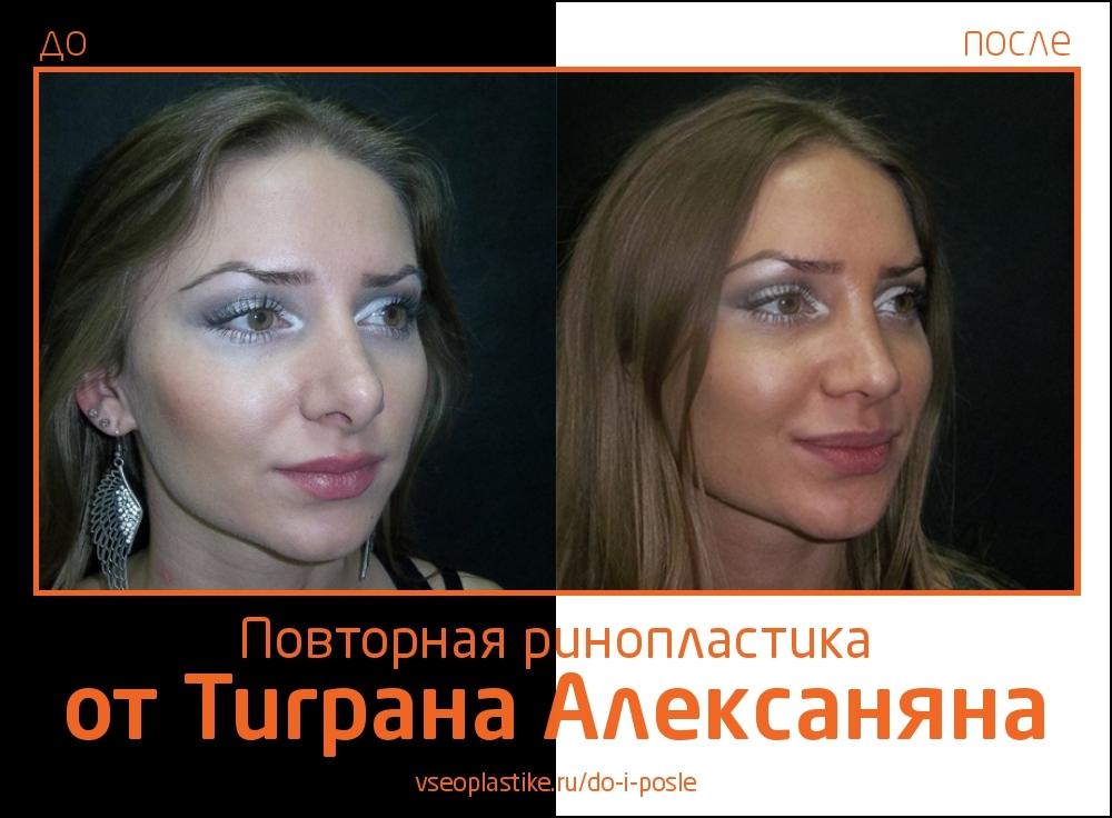 Alexanyan_4