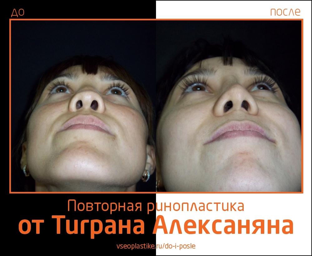 Alexanyan_1