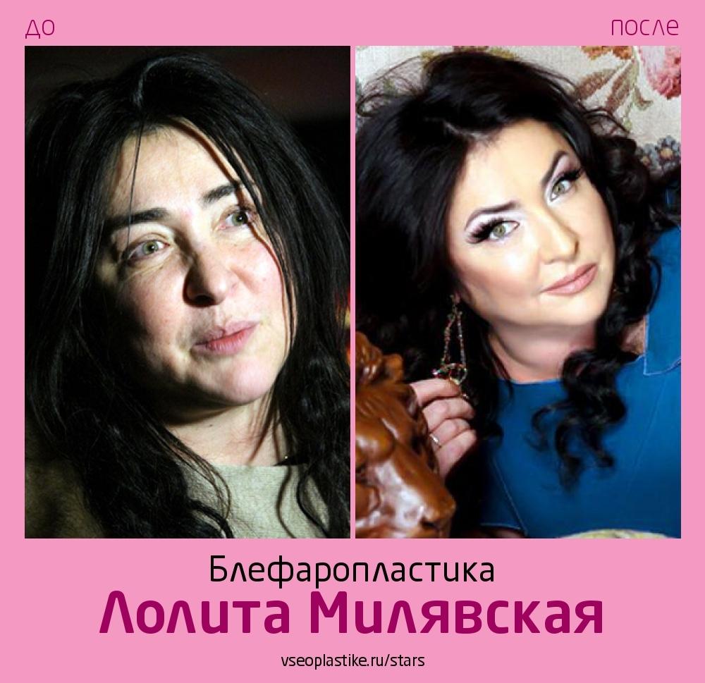 Лолита Милявская до и после блефаропластики