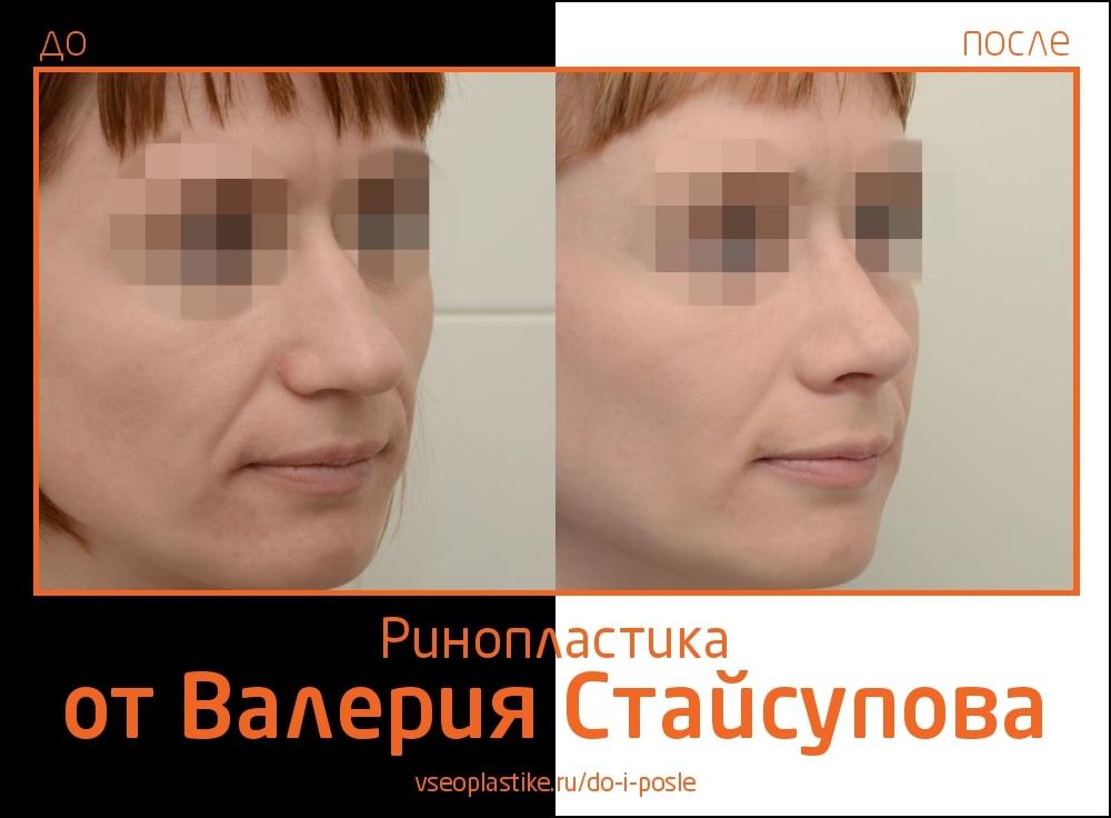 Staisupov_rino_2
