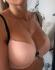 Пациентка Александра Грудько после увеличения груди