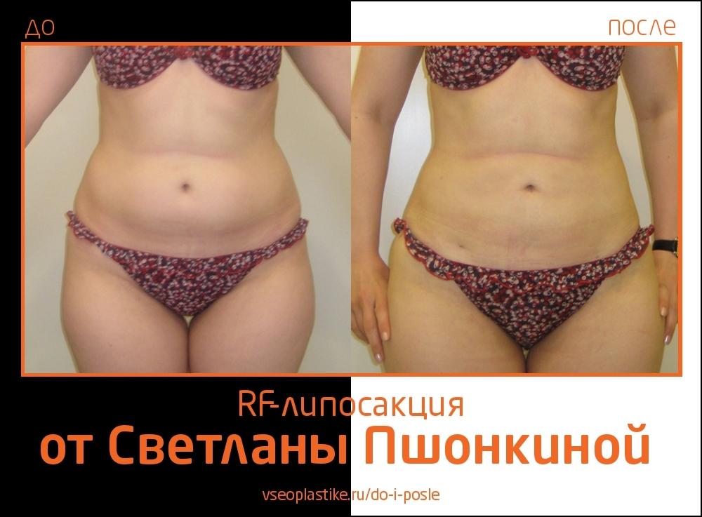 Pshonkina_3