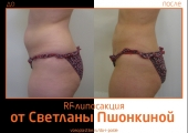 RF-lipo_Pshonkina