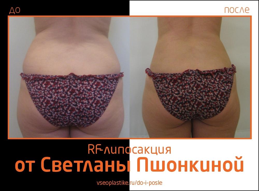 Pshonkina_1