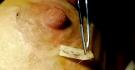 Увеличение груди у Сергея Свиридова с использованием фибринового клея
