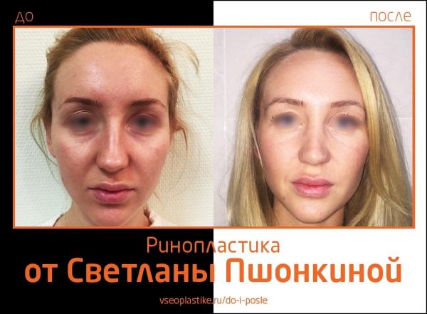 Светлана Пшонкина. Фото до и после ринопластики