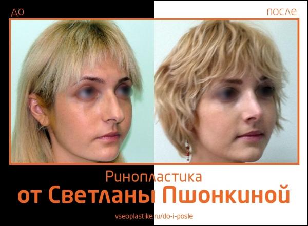 Результаты до и после ринопластики у Пациентки Светланы Пшонкиной
