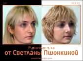 Пациентка Светланы Пшонкиной до и после ринопластики. Предлагаем оценить результат эстетической коррекции носа.