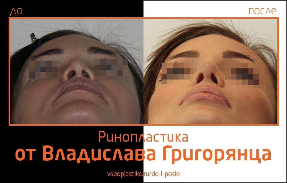 rino_Grigoryantc_3