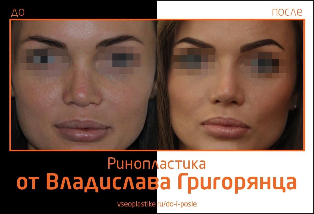 rino_Grigoryantc_1