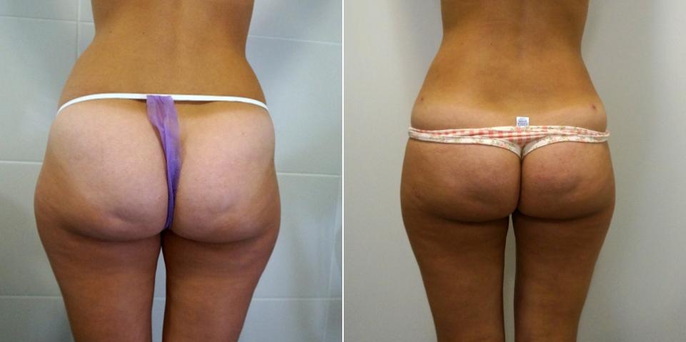 До и после липосакции ягодиц у Доктора Пенаева