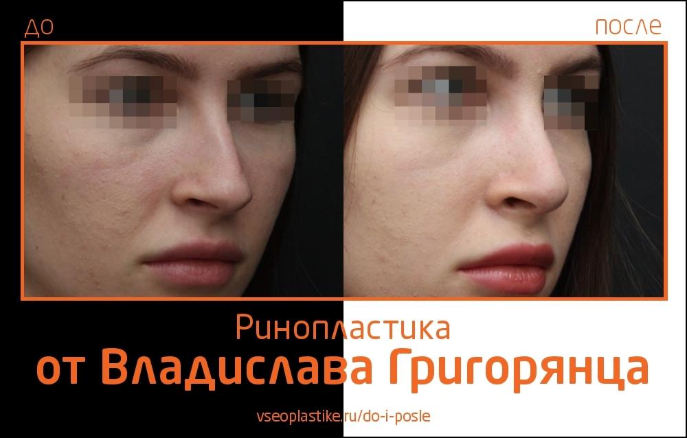 Grigoryantc_rino_2