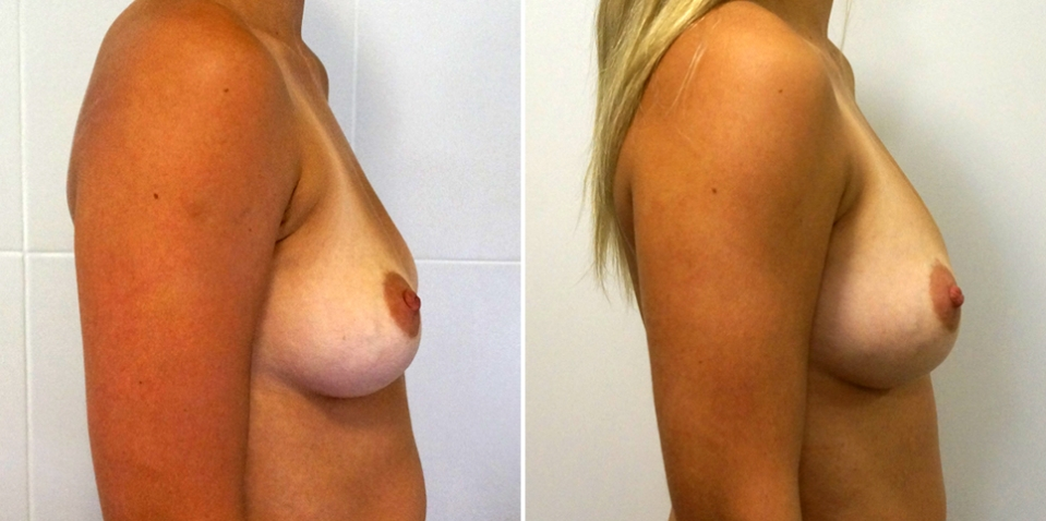 До и после липофилинга груди у доктора Пенаева