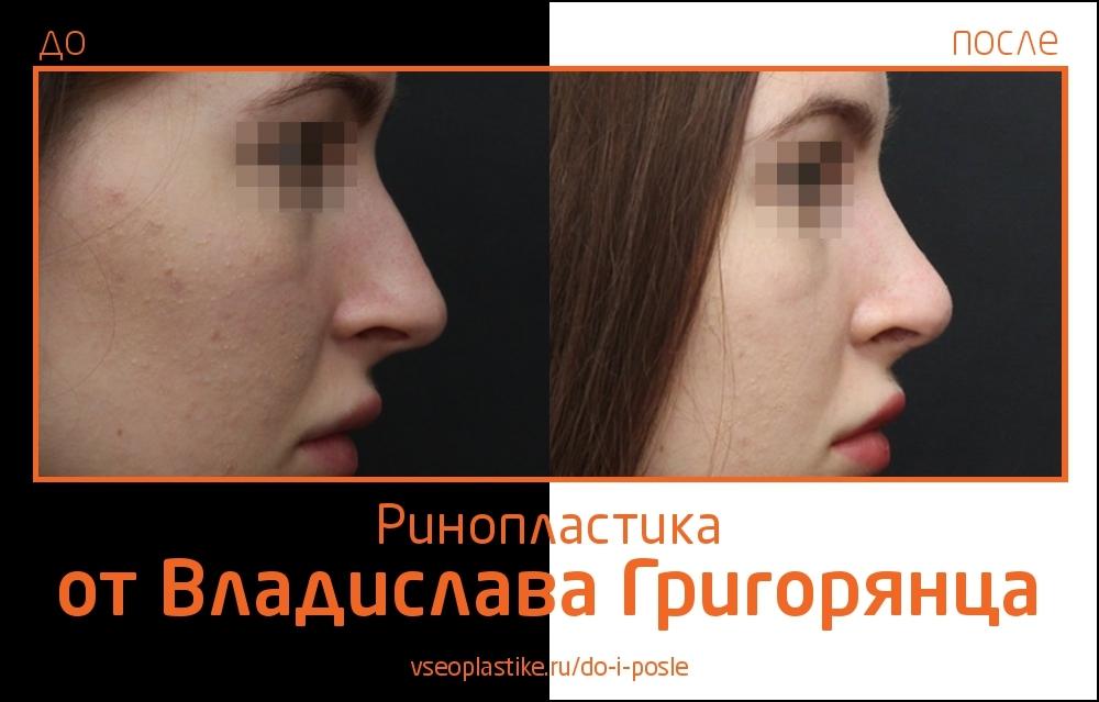 Grigoryantc_rino_3