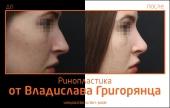 Grigoryantc_rino