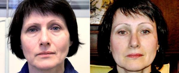 Фото до и после эндоскопического лифтинга у Андрея Ворошкевича