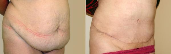 Фото до и после абдоминопластики в Медицинском центре ОН КЛИНИК