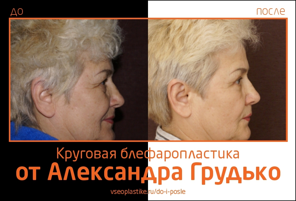 Grudko_blefaro