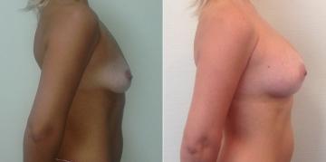 До и после увеличения груди у Светланы Пшонкиной
