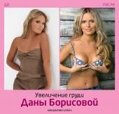 plastika_Dany_Borisovoy