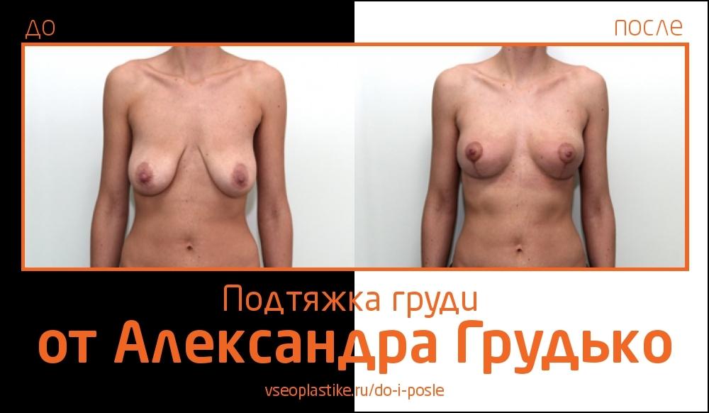Grudko_do_i_posle
