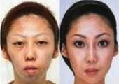 Супруга Фенг до и после пластической операции