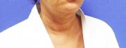 Пациентка Светланы Пшонкиной Евгения после неудачного омоложения шеи до прохождения «Декольте Визаж»