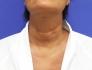 Пациентка Светланы Пшонкиной Евгения после омоложения шеи по методике «Декольте Визаж»