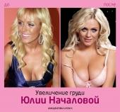 Юлия Началова до и после увеличения груди