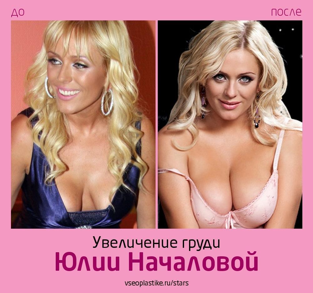 Косметика увеличивающая грудь