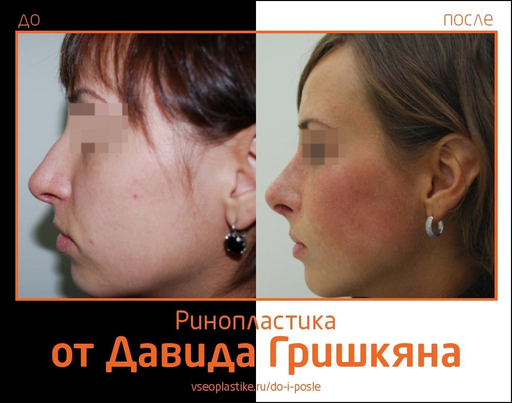 Пациентка Давида Гришкяна до и после ринопластики
